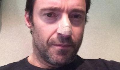 Хью джекману удалили раковую опухоль