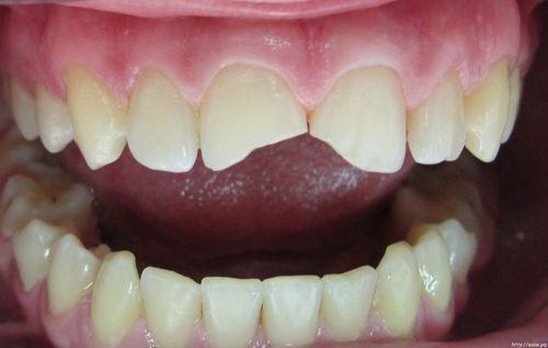 Как коронки и виниры восстанавливают изношенные зубы