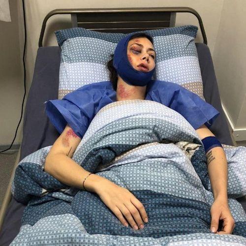 Настасья самбурская впервые вышла в свет после публикации фото, на котором она на больничной койке с разбитым лицом