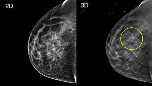 Симптомы и лечение рецидива рака молочной железы