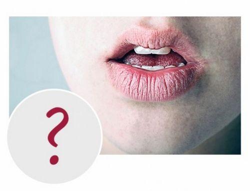Сухие губы: почему возникает проблема сухости губ и как ее решить
