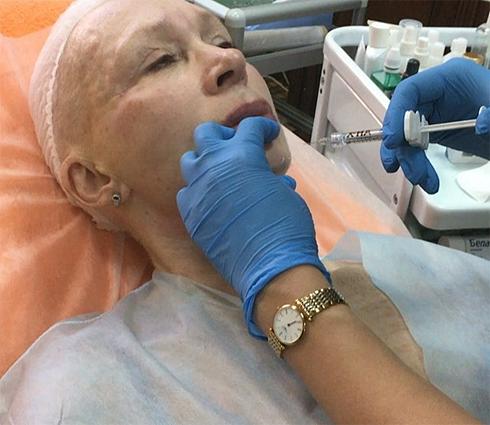 Татьяна васильева сделала пластическую операцию?